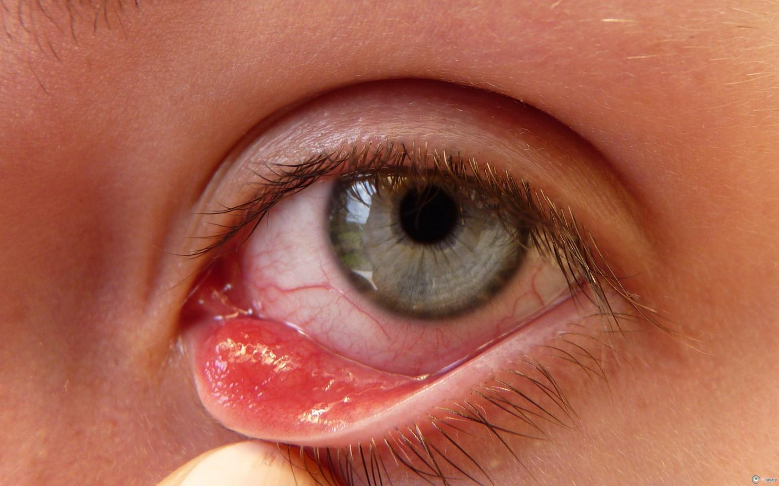 a helmintikus kezelés terápiás betegség