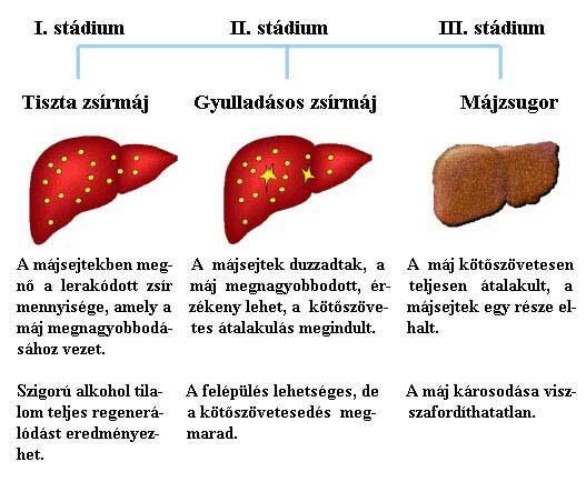 fordított papilloma hólyagtünetek