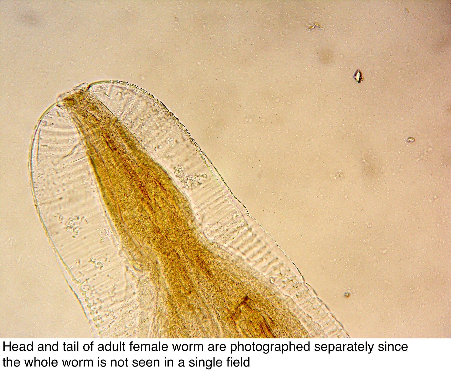enterobius vermicularis földrajzi eloszlás