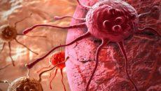 hpv vírus és mióma