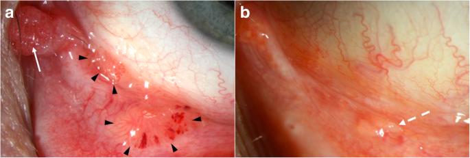 a leghatékonyabb parazitaellenes szer papilloma choroid plexus tumor