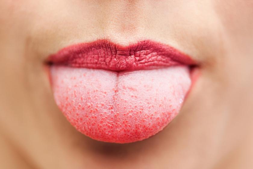 hpv a nyelvemen