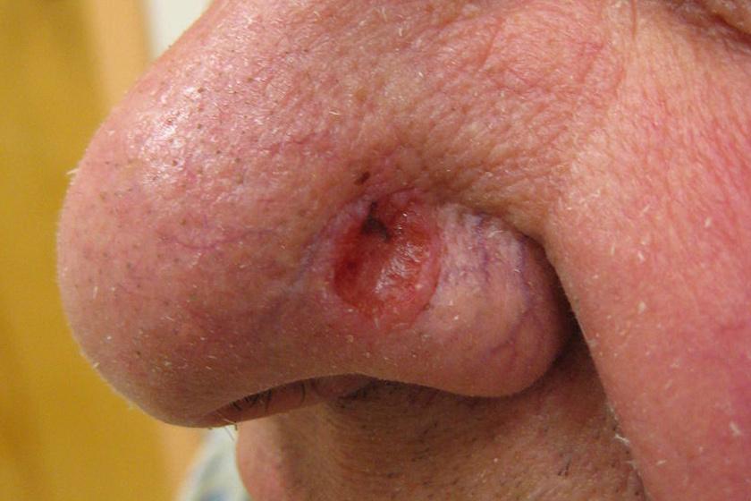 agresszív rákos szarkóma