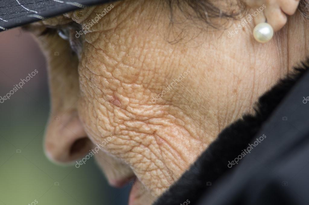 arc papilloma eltávolítása