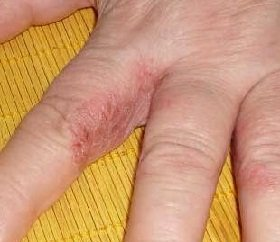 a krónikus giardiasis tünetei