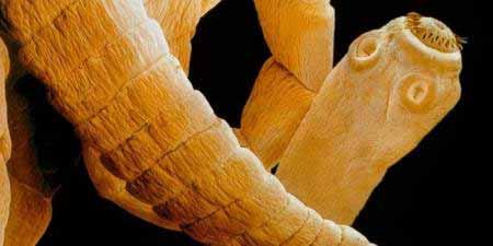 Bélférgesség tünetei és kezelése - Bélféreg gyorsteszt