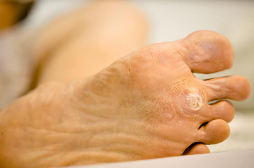 A pénisz szemölcsök: okok, tünetek, kezelés - Bőrgyulladás October