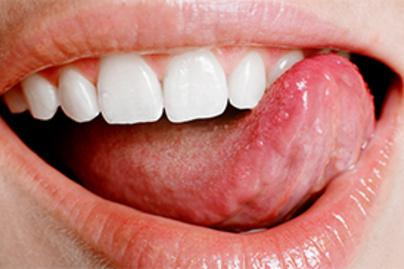 Papilloma vírus torok tünetei