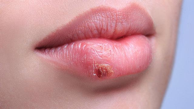 condyloma kezelése az ajkakon papilloma vírus rák előtti elváltozások