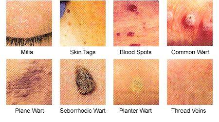 Humán papillomavírus, Humán papillomavírus áttekintése
