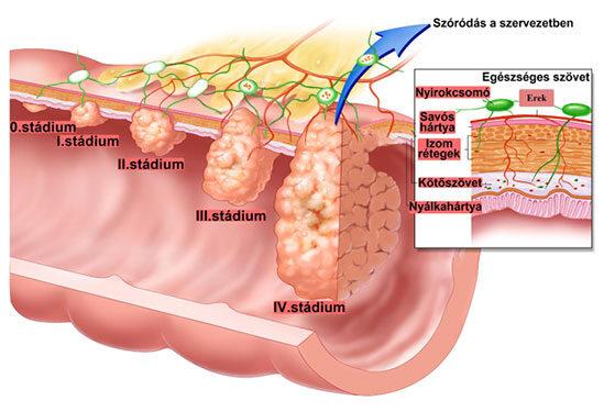 A vastagbélrák okai és tünetei tabletták laposférgekhez emberek számára
