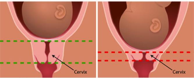 Méhnyakrák – Nőgyógyászati Onkológiai és Daganatsebészeti Osztály