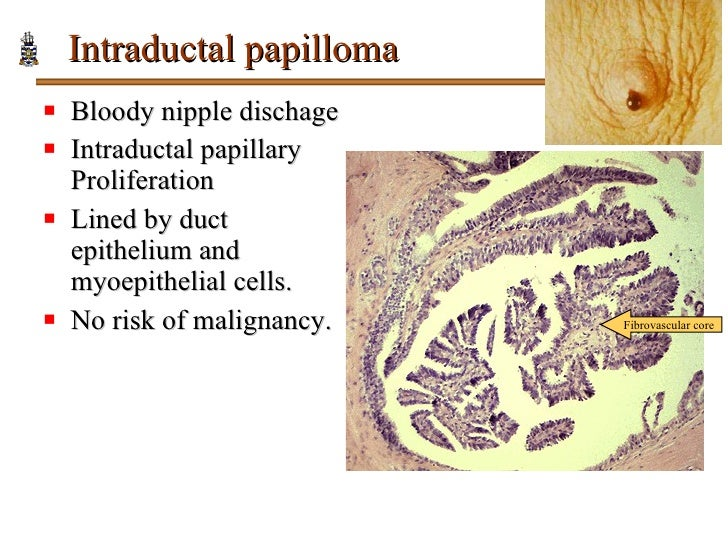 ductalis papilloma ppt