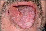 ano papillomavírus