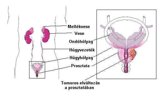 hormonérzékeny prosztatarák