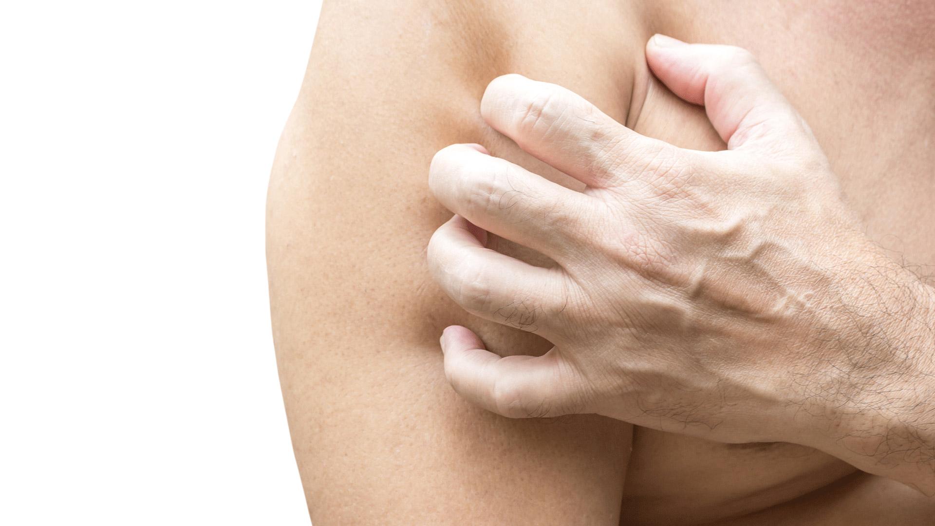 intim terület dermatitis