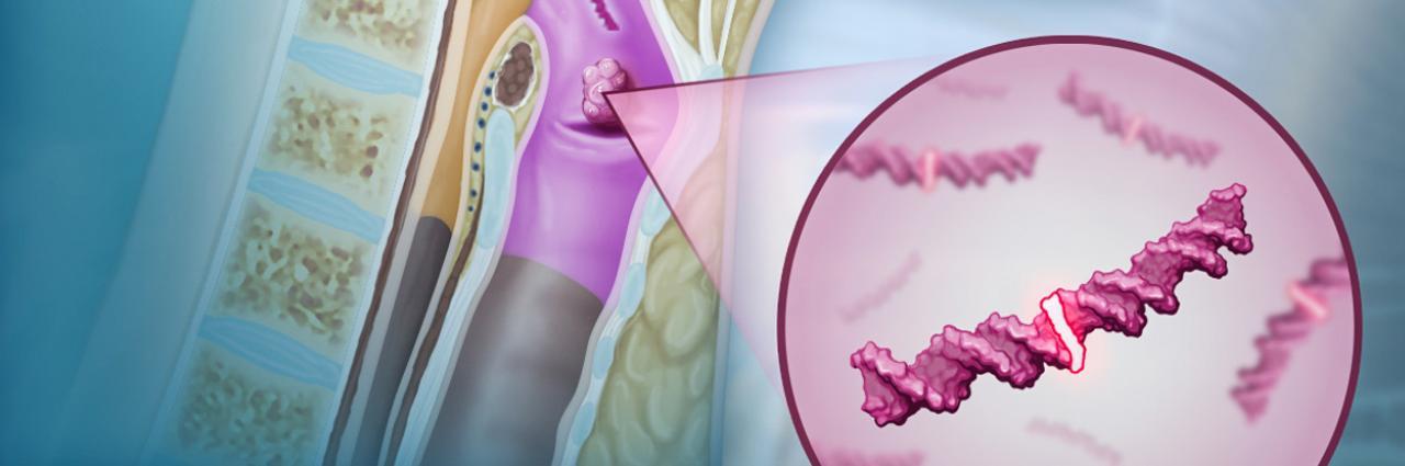 humán papillomavírus uk szemölcsök a nemi szervek területén