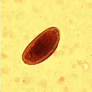 Dpdx paraziták. Cdc dpdx paraziták, Tartalomjegyzék
