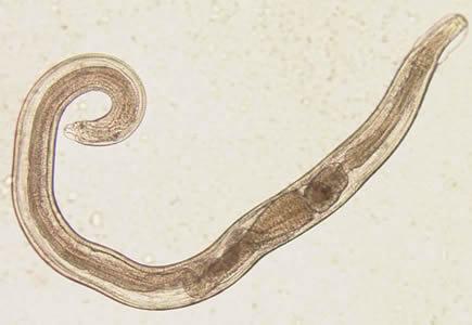 enterobiasis tenni)