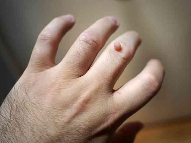 Vírusos szemölcs tünetei, eltávolítása - Oktogon Medical Center