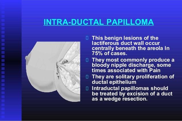 ductalis papilloma ppt féreggyógyszer 3
