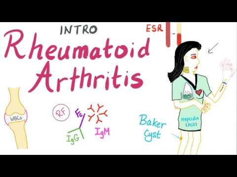 jelölje meg az érintkezési helminthiasist