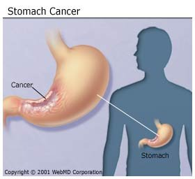 gyomor bypass rák