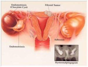 a hashártya rák rossz