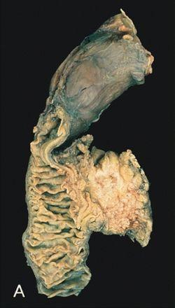 Hasnyálmirigyrák: megelőzés és immunrendszer erősítés jelentősége