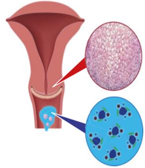 hogyan kell kezelni a HPV-t
