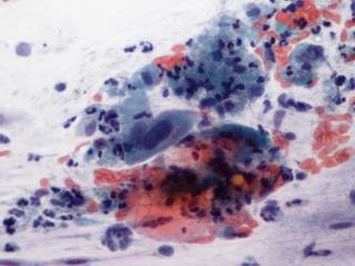 Hogyan lehet növelni a HPV okozta immunitást