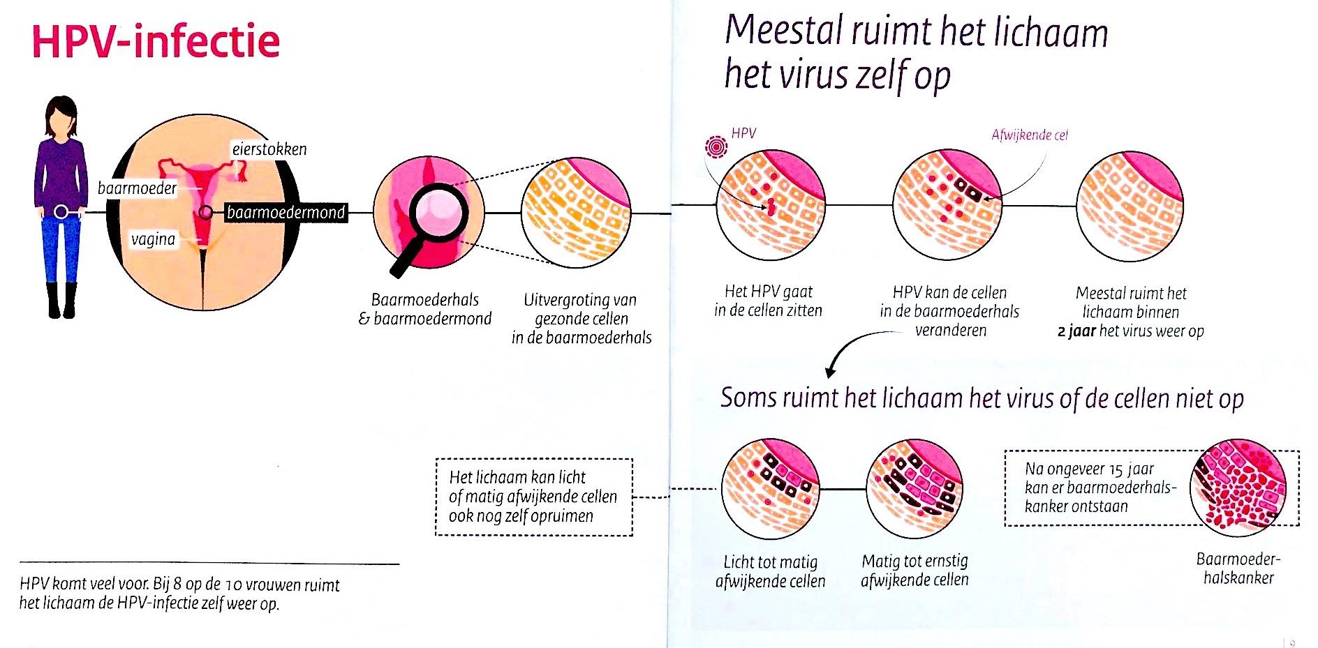 hpv vírus uit lichaam
