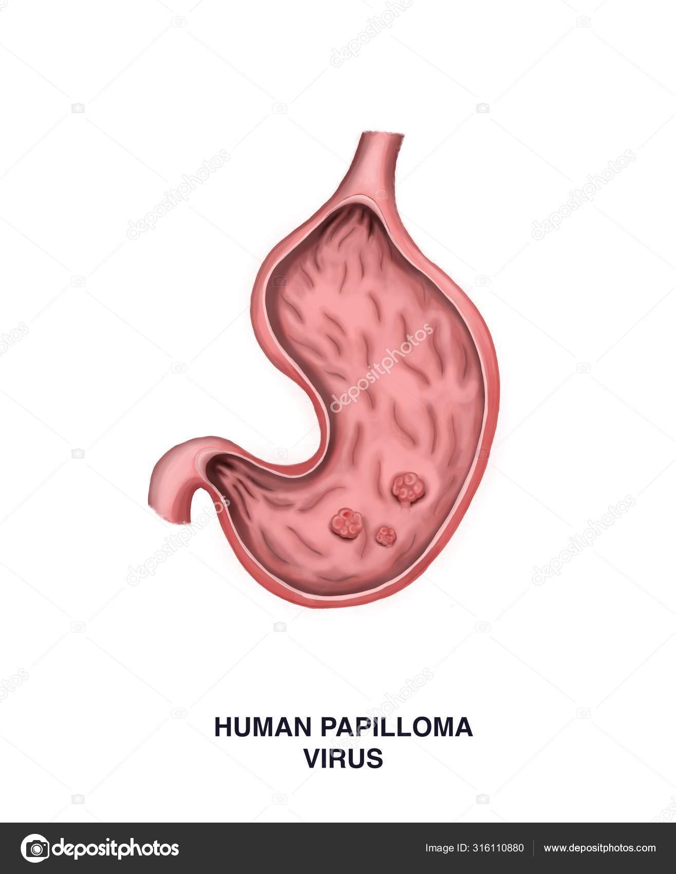 középkorú papillomavírus