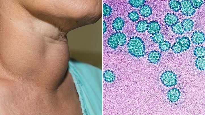 giardiasis pestis a kezelés ellen parazita ételek