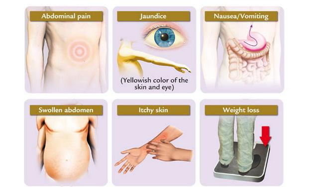 Májrák: a betegség és tünetei