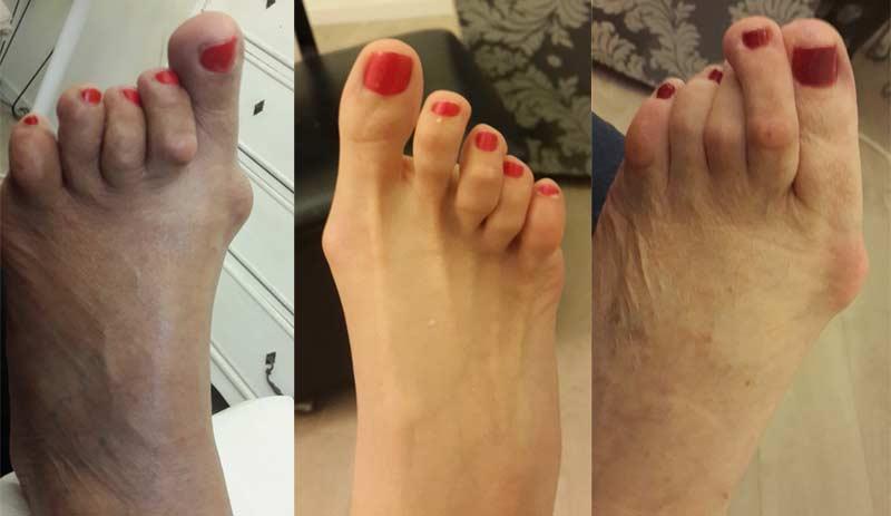 Bőrgyógyászati megbetegedések Kerek férgek a bőrön, Kerek féreg bőr