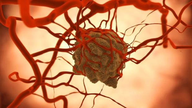 OTSZ Online - Hormonális fogamzásgátlás és a daganatok