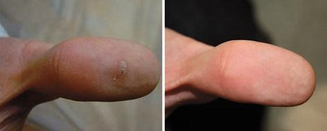 papillómák vélemények, akik felépültek a helminthiasis komplex kezelése