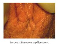 papilloma atheroma lipoma condyloma
