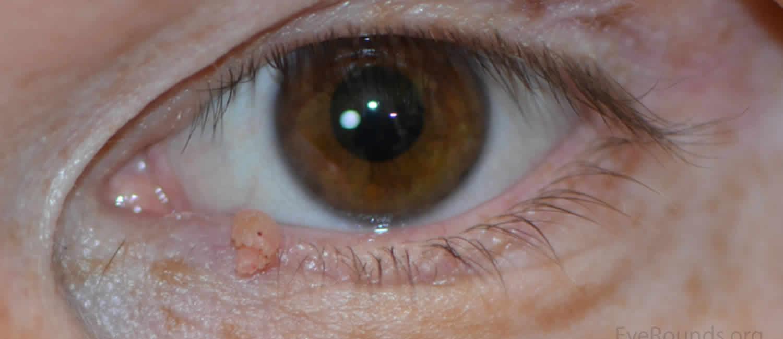 papilloma az emberi szemekben