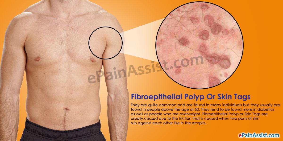 papilloma fibroepithelialis