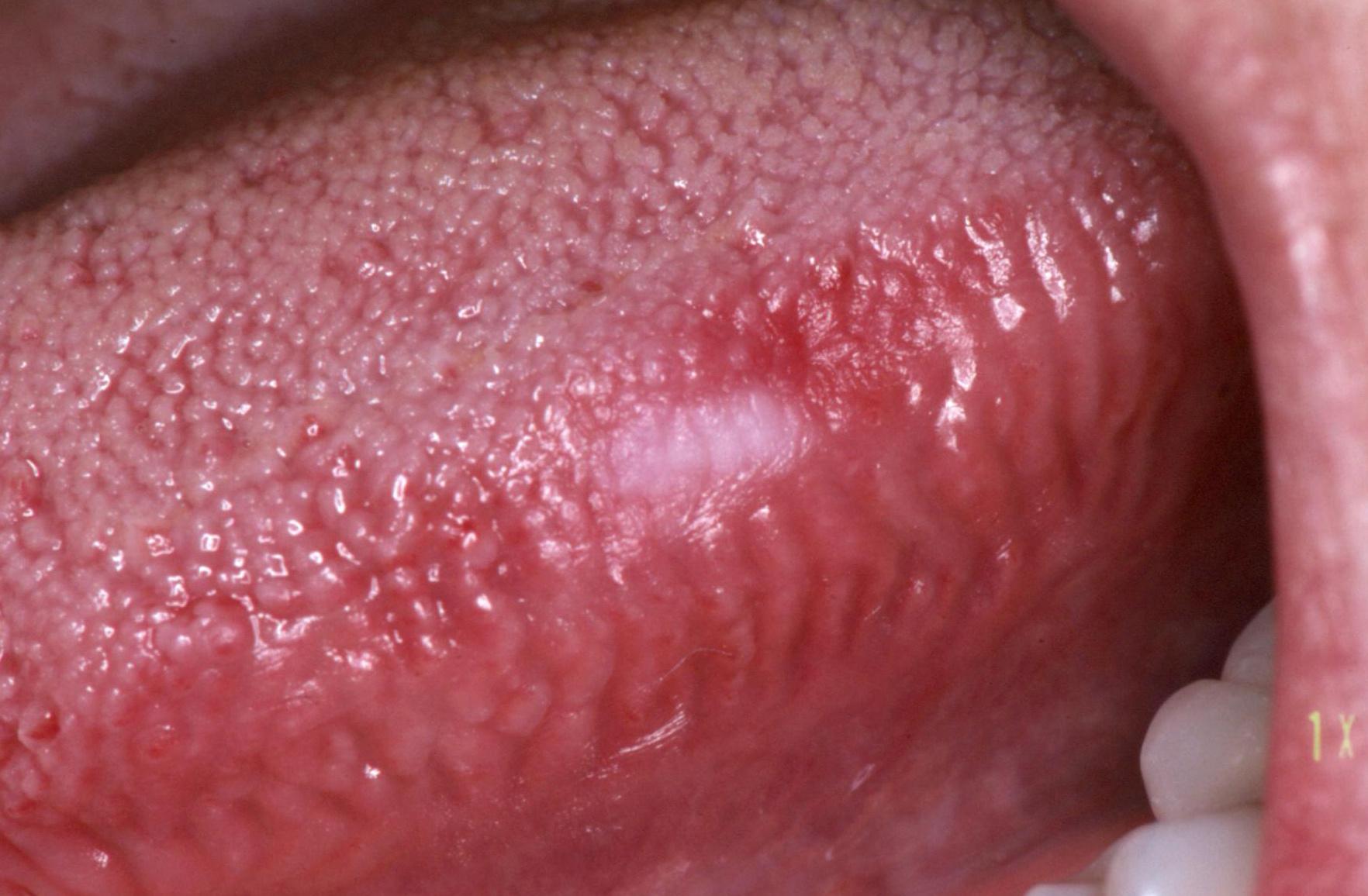 szemölcsök a szájnyelven gyomorrák esmo 2020