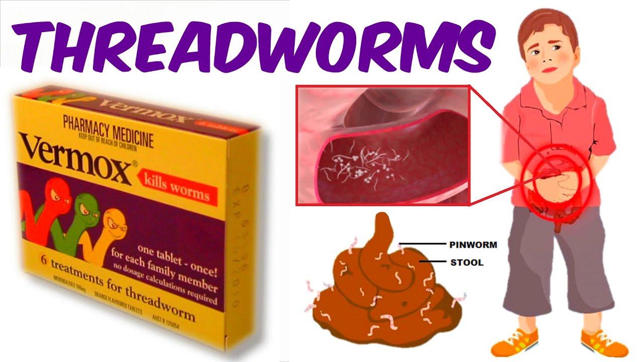 Pinworms fénykép - Pinworm worms fénykép és kezelés