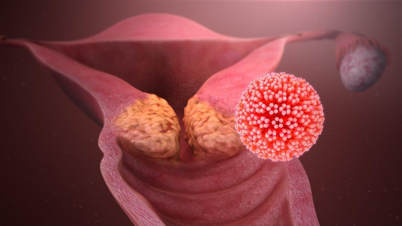 vér papilloma