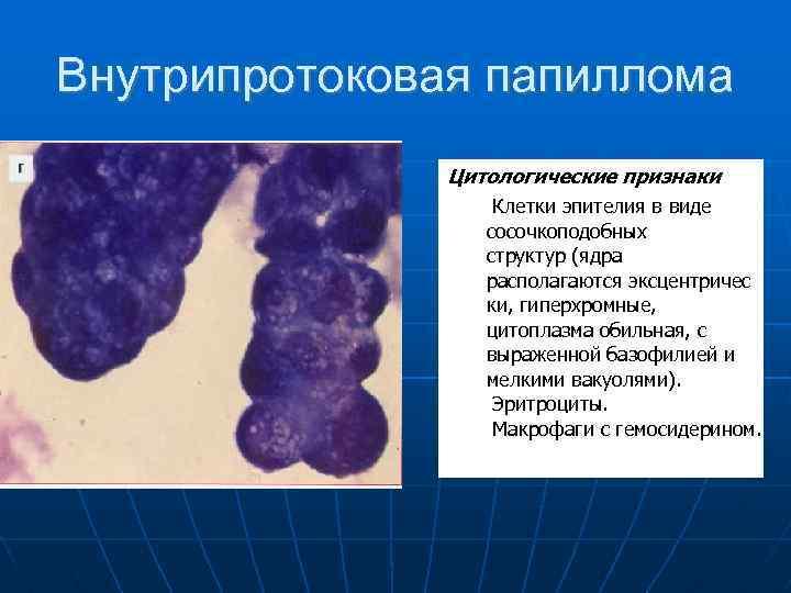 Intraduktális papilloma kezelés jelei | PapiSTOP
