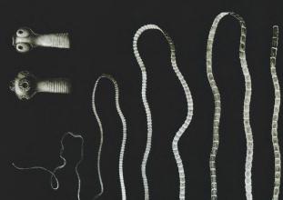 Hogyan fejlődik a férgek? Pinworms emberi fejlődési ciklus