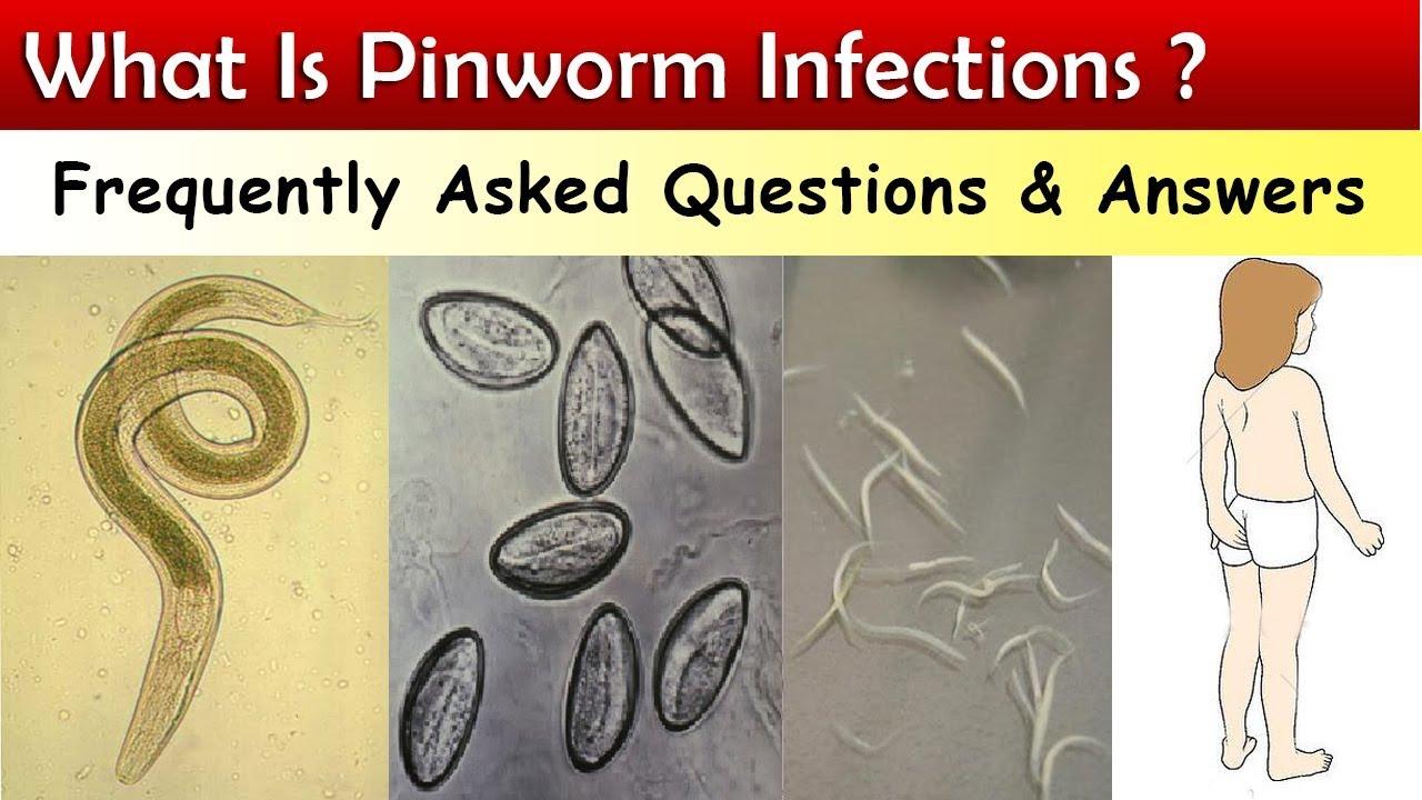 hova kerül a pinworm tojás?
