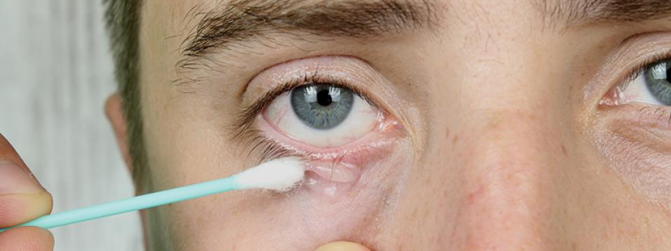 Paraziták és psoriasis kezelés - Psoriasis parazita kezelés ,gelstena helminták ellen