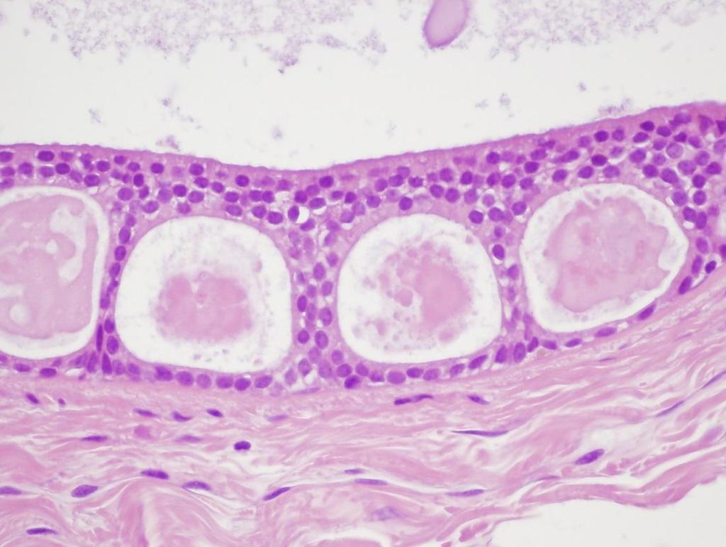övsömör és papillomavírus humán papillomavírus vakcinák nih