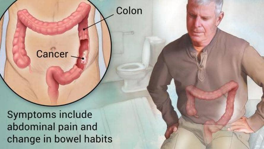 vastagbélrák és ülepedési arány papilloma vírus és daganat